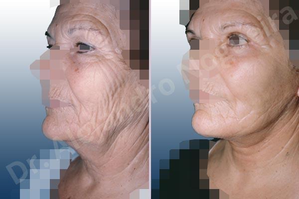 Before & After Case FBQR4GVI