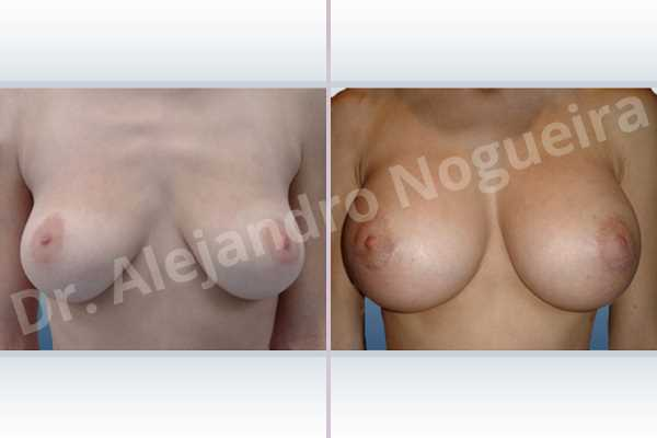 Empty breasts,Lateral breasts,Moderately large breasts,Moderately saggy droopy breasts,Pendulous breasts,Severely saggy droopy breasts,Skinny breasts,Slightly large breasts,Too far apart wide cleavage breasts,Anatomical shape,Extra large size,Lower hemi periareolar incision,Subfascial pocket plane - photo 1