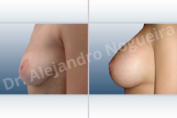 Empty breasts,Lateral breasts,Moderately large breasts,Moderately saggy droopy breasts,Pendulous breasts,Severely saggy droopy breasts,Skinny breasts,Slightly large breasts,Too far apart wide cleavage breasts,Anatomical shape,Extra large size,Lower hemi periareolar incision,Subfascial pocket plane - photo 2