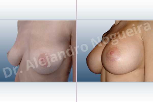 Empty breasts,Lateral breasts,Moderately large breasts,Moderately saggy droopy breasts,Pendulous breasts,Severely saggy droopy breasts,Skinny breasts,Slightly large breasts,Too far apart wide cleavage breasts,Anatomical shape,Extra large size,Lower hemi periareolar incision,Subfascial pocket plane - photo 3