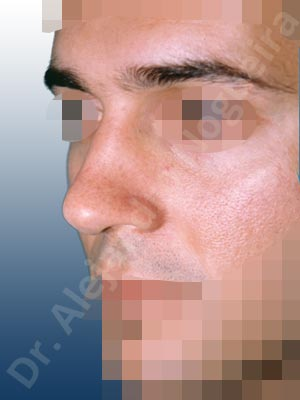 Dorsum ridges,Humpless dorsum,Large alar cartilages,Rhomboid dorsum,Thin skin nose,Closed approach incision,Dorsum plateau resection,Lateral cruras cephalic resection,Nasal bones osteotomies