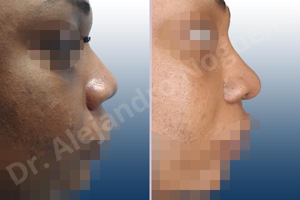 Before & After Case FVJ69A2V