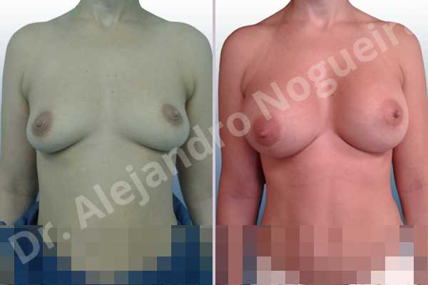 Asymmetric breasts,Cross eyed breasts,Empty breasts,Large areolas,Lateral breasts,Moderately saggy droopy breasts,Pendulous breasts,Pigeon chest,Small breasts,Too far apart wide cleavage breasts,Anatomical shape,Lower hemi periareolar incision,Subfascial pocket plane - photo 1