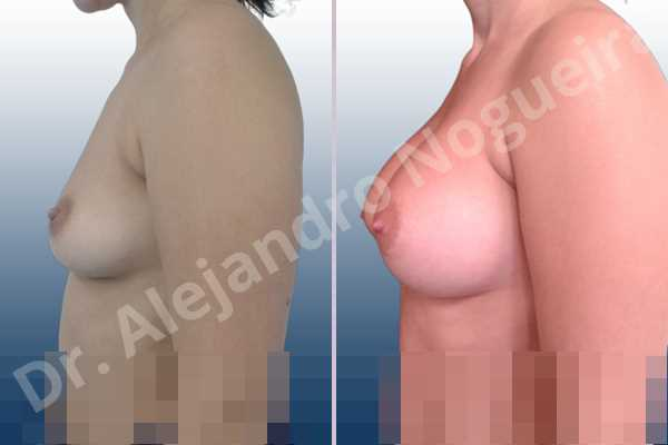 Asymmetric breasts,Cross eyed breasts,Empty breasts,Large areolas,Lateral breasts,Moderately saggy droopy breasts,Pendulous breasts,Pigeon chest,Small breasts,Too far apart wide cleavage breasts,Anatomical shape,Lower hemi periareolar incision,Subfascial pocket plane - photo 2