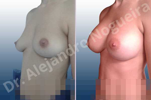 Asymmetric breasts,Cross eyed breasts,Empty breasts,Large areolas,Lateral breasts,Moderately saggy droopy breasts,Pendulous breasts,Pigeon chest,Small breasts,Too far apart wide cleavage breasts,Anatomical shape,Lower hemi periareolar incision,Subfascial pocket plane - photo 3