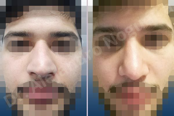 Alar rim retraction,Arabic nose,Asymmetric tip,Bifid columella,Bifid tip,Concave lateral cruras,Congenital nose,Crooked tip,Dorsum hump,Droopy tip,Dynamic alar flaring,Hanging columella,Large alar cartilages,Large nose,Long nose,Long upper lateral cartilages,Overprojected tip,Plunging tip deformity,Pointy tip,Polly beak deformity,Poorly supported tip,Thick skin nose,Tip bossae,Columella strut graft,Dorsum hump resection,Intercrural columella plasty sutures,Interdomal tip plasty sutures,Lateral cruras cephalic resection,Lateral cruras cross location,Lateral cruras plasty sutures,Lateral cruras repositioning,Lateral cruras reverse plasty,Lateral cruras shortening resection,Medial cruras shortening resection,Nasal bones osteotomies,Open approach incision,Tip defatting,Tongue in groove columella setback,Transdomal tip plasty scoring,Transdomal tip plasty sutures,Triangular cartilages caudal resection - photo 1