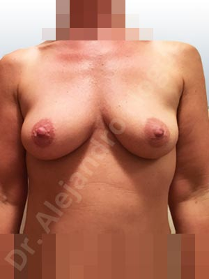 Asymmetric breasts,Empty breasts,Slightly saggy droopy breasts,Small breasts,Anatomical shape,Lower hemi periareolar incision,Subfascial pocket plane