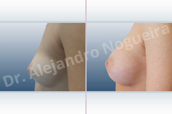 Cleft nipples,Cross eyed breasts,Cross eyed breasts implants,Empty breasts,Inverted nipples,Lateral breasts,Narrow breasts,Skinny breasts,Sunken chest,Too far apart wide cleavage breast implants,Too far apart wide cleavage breasts,Anatomical shape,Inframammary incision,Subfascial pocket plane - photo 2