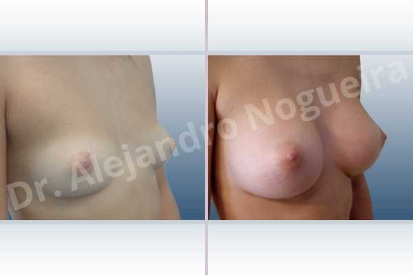 Cleft nipples,Cross eyed breasts,Cross eyed breasts implants,Empty breasts,Inverted nipples,Lateral breasts,Narrow breasts,Skinny breasts,Sunken chest,Too far apart wide cleavage breast implants,Too far apart wide cleavage breasts,Anatomical shape,Inframammary incision,Subfascial pocket plane - photo 5