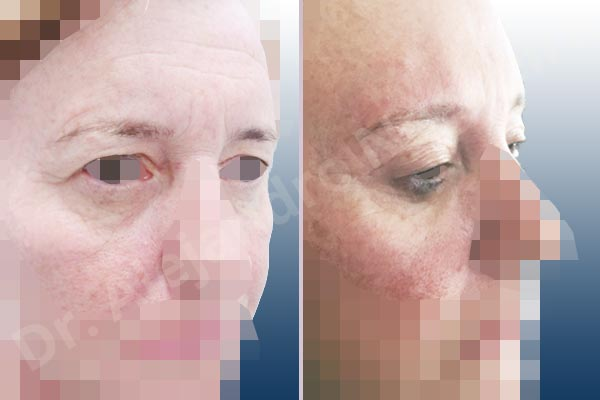 Baggy lower eyelids,Baggy upper eyelids,Deep nasolabial folds,Droopy cheeks,Droopy eyebrows,Droopy face,Droopy forehead,Saggy upper eyelids,Upper eyelids ptosis,Lower eyelid fat bags resection,Short temporal incisions supraperiosteal extended lift of the upper two thirds of the face,Transconjunctival approach incision,Upper eyelid fat bags resection,Upper eyelid skin and muscle resection - photo 3
