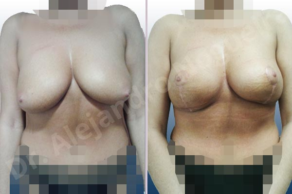 Cross eyed breasts,Lateral breasts,Moderately saggy droopy breasts,Too far apart wide cleavage breasts,Tuberous breasts,Wide breasts,Custom made size and shape,Lollipop incision,Superior pedicle - photo 1