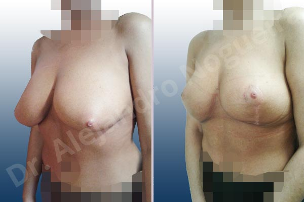 Cross eyed breasts,Lateral breasts,Moderately saggy droopy breasts,Too far apart wide cleavage breasts,Tuberous breasts,Wide breasts,Custom made size and shape,Lollipop incision,Superior pedicle - photo 3