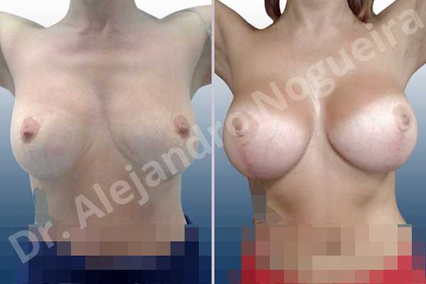 Before & After Case GGHIWNRA