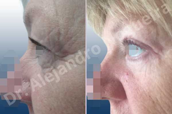 Baggy lower eyelids,Baggy upper eyelids,Saggy lower eyelids,Saggy upper eyelids,Upper eyelids ptosis,Lower eyelid fat bags resection,Lower eyelid skin and muscle resection,Subciliary approach incision,Upper eyelid fat bags resection,Upper eyelid skin and muscle resection - photo 2