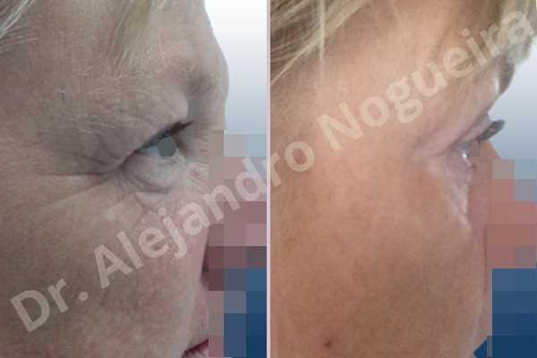 Before & After Case GGTVJTUH