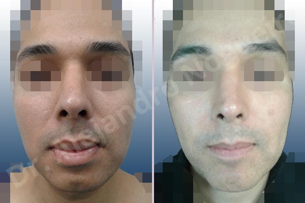 Small chin,Weak chin,Large lips,Lower lip vermilion wedge resection,Elbow bone graft harvesting,Horizontal osseous chin grafting,Oblique chin osteotomy,Osseous chin advancement,Two dimensional genioplasty