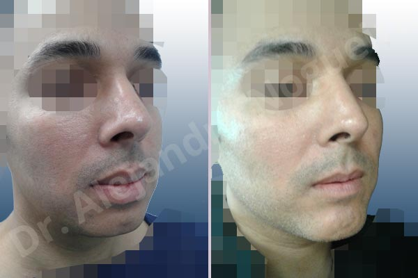 Before & After Case GH6BTLBR