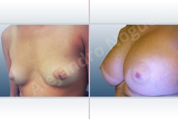 Asymmetric breasts,Cleft nipples,Empty breasts,Inverted nipples,Narrow breasts,Small breasts,Sunken chest,Anatomical shape,Extra large size,Subfascial pocket plane,Inframammary incision - photo 3