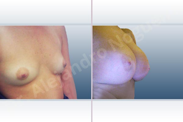 Asymmetric breasts,Cleft nipples,Empty breasts,Inverted nipples,Narrow breasts,Small breasts,Sunken chest,Anatomical shape,Extra large size,Subfascial pocket plane,Inframammary incision - photo 5
