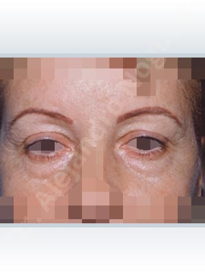 Baggy lower eyelids,Baggy upper eyelids,Saggy upper eyelids,Upper eyelids ptosis,Lower eyelid fat bags resection,Transconjunctival approach incision,Upper eyelid fat bags resection,Upper eyelid skin and muscle resection