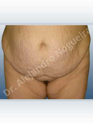 Saggy abdomen,Weak abdomen muscles,Panniculectomy