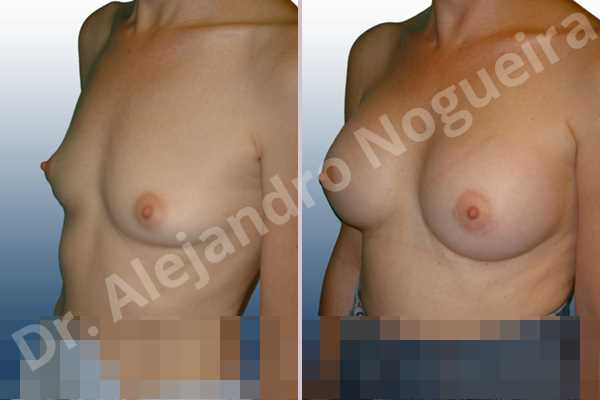 Lateral breasts,Skinny breasts,Small breasts,Too far apart wide cleavage breasts,Anatomical shape,Lower hemi periareolar incision,Subfascial pocket plane - photo 3