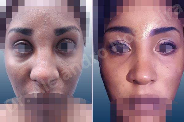 Before & After Case GXPWGJ8R