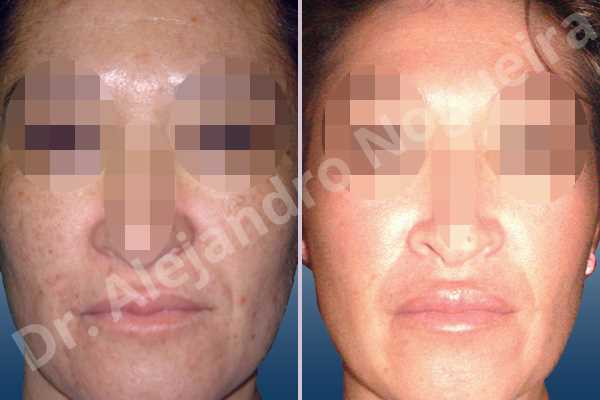 Small lips,Upper lip autologous dermis collagen filler