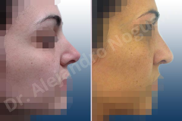 Revision Rhinoplasty Reconstruction Rhinoplasty