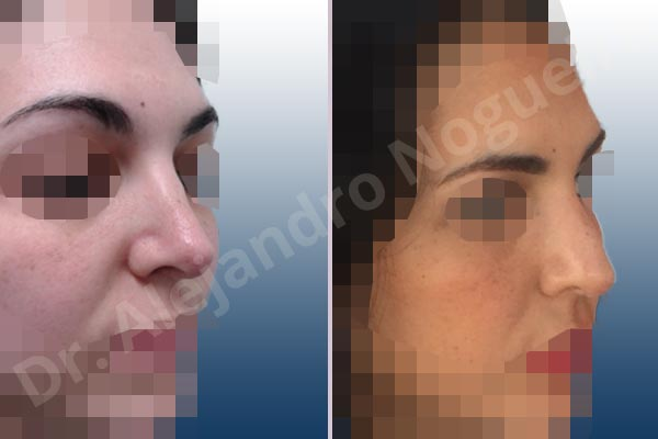 Open Roof Deformity Nose Revision Rhinoplasty Of Asian
