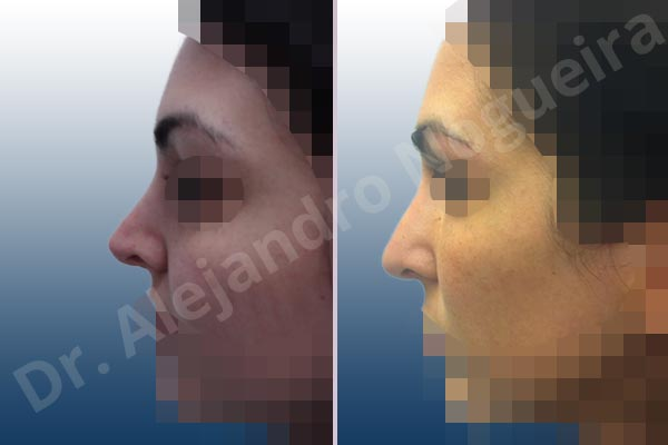 Before & After Case HAKRJQEX