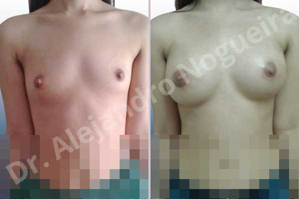 Asymmetric breasts,Empty breasts,Narrow breasts,Skinny breasts,Small breasts,Sunken chest,Anatomical shape,Lower hemi periareolar incision,Subfascial pocket plane - photo 1
