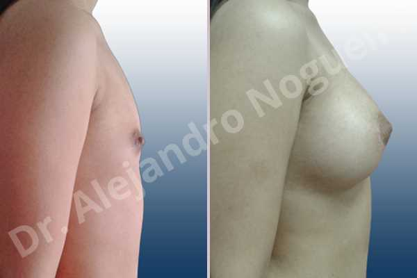 Asymmetric breasts,Empty breasts,Narrow breasts,Skinny breasts,Small breasts,Sunken chest,Anatomical shape,Lower hemi periareolar incision,Subfascial pocket plane - photo 4