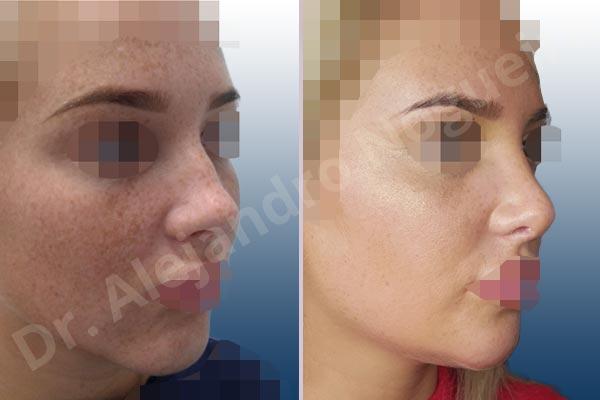 Before & After Case HIKB6M3U