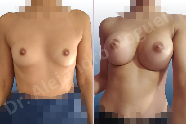 Asymmetric breasts,Empty breasts,Narrow breasts,Skinny breasts,Small breasts,Extra large size,Inframammary incision,Round shape,Subfascial pocket plane - photo 1