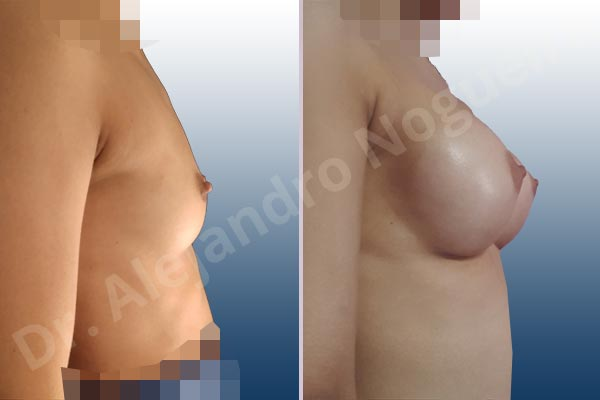 Asymmetric breasts,Empty breasts,Narrow breasts,Skinny breasts,Small breasts,Extra large size,Inframammary incision,Round shape,Subfascial pocket plane - photo 4