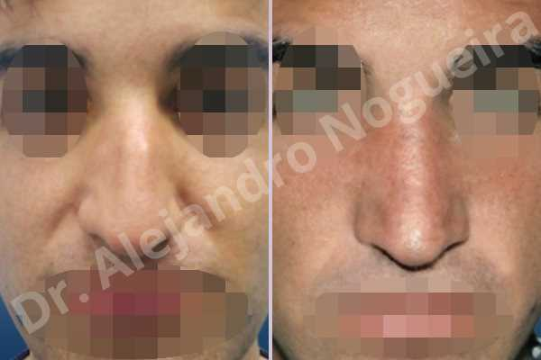 Broad nose,Crooked nose,Dorsum hump,Dorsum ridges,Droopy tip,Large nose,Long nose,Long septum,Long upper lateral cartilages,Mediterranean nose,Overprojected tip,Plunging tip deformity,Thick skin nose,Closed approach incision,Dorsum hump resection,Lateral cruras cephalic resection,Lateral cruras shortening resection,Medial cruras shortening resection,Nasal bones osteotomies,Triangular cartilages caudal resection