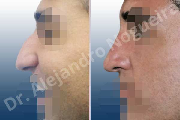 Broad nose,Crooked nose,Dorsum hump,Dorsum ridges,Droopy tip,Large nose,Long nose,Long septum,Long upper lateral cartilages,Mediterranean nose,Overprojected tip,Plunging tip deformity,Thick skin nose,Closed approach incision,Dorsum hump resection,Lateral cruras cephalic resection,Lateral cruras shortening resection,Medial cruras shortening resection,Nasal bones osteotomies,Triangular cartilages caudal resection - photo 2