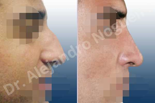 Broad nose,Crooked nose,Dorsum hump,Dorsum ridges,Droopy tip,Large nose,Long nose,Long septum,Long upper lateral cartilages,Mediterranean nose,Overprojected tip,Plunging tip deformity,Thick skin nose,Closed approach incision,Dorsum hump resection,Lateral cruras cephalic resection,Lateral cruras shortening resection,Medial cruras shortening resection,Nasal bones osteotomies,Triangular cartilages caudal resection - photo 4