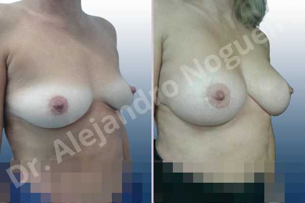 Asymmetric breasts,Cross eyed breasts,Empty breasts,Lateral breasts,Mildly saggy droopy breasts,Small breasts,Too far apart wide cleavage breasts,Wide breasts,Anatomical shape,Inframammary incision,Subfascial pocket plane - photo 5