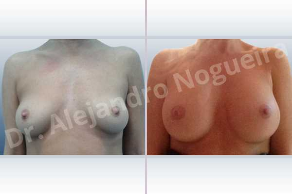 Asymmetric breasts,Empty breasts,Lateral breasts,Pigeon chest,Slightly saggy droopy breasts,Small breasts,Too far apart wide cleavage breasts,Wide breasts,Anatomical shape,Inframammary incision,Subfascial pocket plane - photo 1