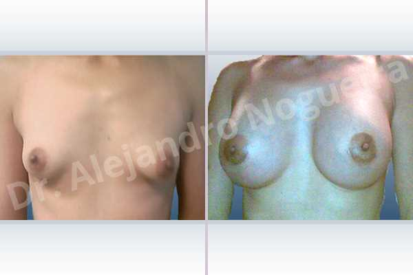 Asymmetric breasts,Cross eyed breasts,Empty breasts,Lateral breasts,Narrow breasts,Skinny breasts,Small breasts,Sunken chest,Too far apart wide cleavage breasts,Tuberous breasts,Anatomical shape,Lower hemi periareolar incision,Subfascial pocket plane,Tuberous mammoplasty - photo 1