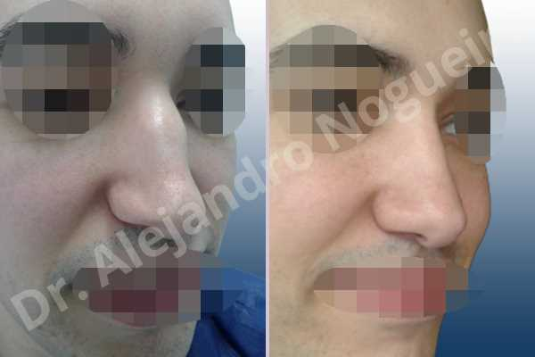 Before & After Case IAJKYWUC