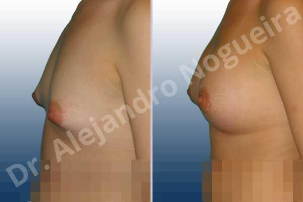 Asymmetric breasts,Cross eyed breasts,Narrow breasts,Small breasts,Tuberous breasts,Lower hemi periareolar incision,Round shape,Subfascial pocket plane,Tuberous mammoplasty - photo 2