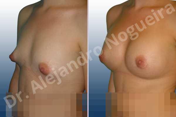 Asymmetric breasts,Cross eyed breasts,Narrow breasts,Small breasts,Tuberous breasts,Lower hemi periareolar incision,Round shape,Subfascial pocket plane,Tuberous mammoplasty - photo 3