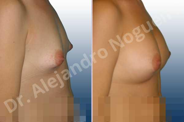 Asymmetric breasts,Cross eyed breasts,Narrow breasts,Small breasts,Tuberous breasts,Lower hemi periareolar incision,Round shape,Subfascial pocket plane,Tuberous mammoplasty - photo 4