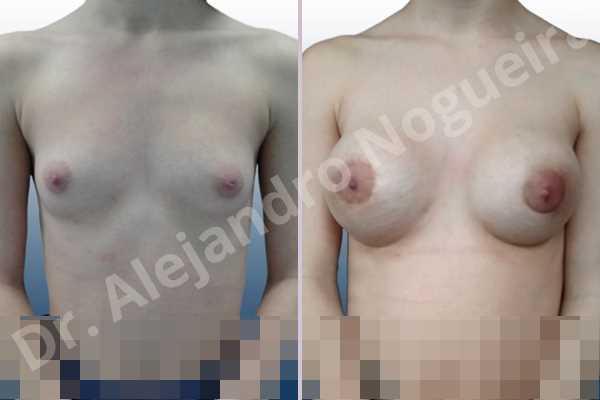 Cross eyed breasts,Empty breasts,Narrow breasts,Skinny breasts,Small breasts,Lower hemi periareolar incision,Round shape,Subfascial pocket plane - photo 1