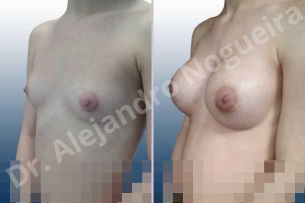 Cross eyed breasts,Empty breasts,Narrow breasts,Skinny breasts,Small breasts,Lower hemi periareolar incision,Round shape,Subfascial pocket plane - photo 3