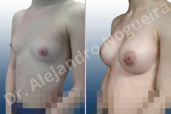 Cross eyed breasts,Empty breasts,Narrow breasts,Skinny breasts,Small breasts,Lower hemi periareolar incision,Round shape,Subfascial pocket plane - photo 5
