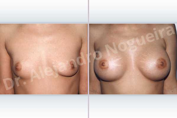 Asymmetric breasts,Cross eyed breasts,Empty breasts,Lateral breasts,Skinny breasts,Slightly saggy droopy breasts,Small breasts,Too far apart wide cleavage breasts,Lower hemi periareolar incision,Round shape,Subfascial pocket plane - photo 1
